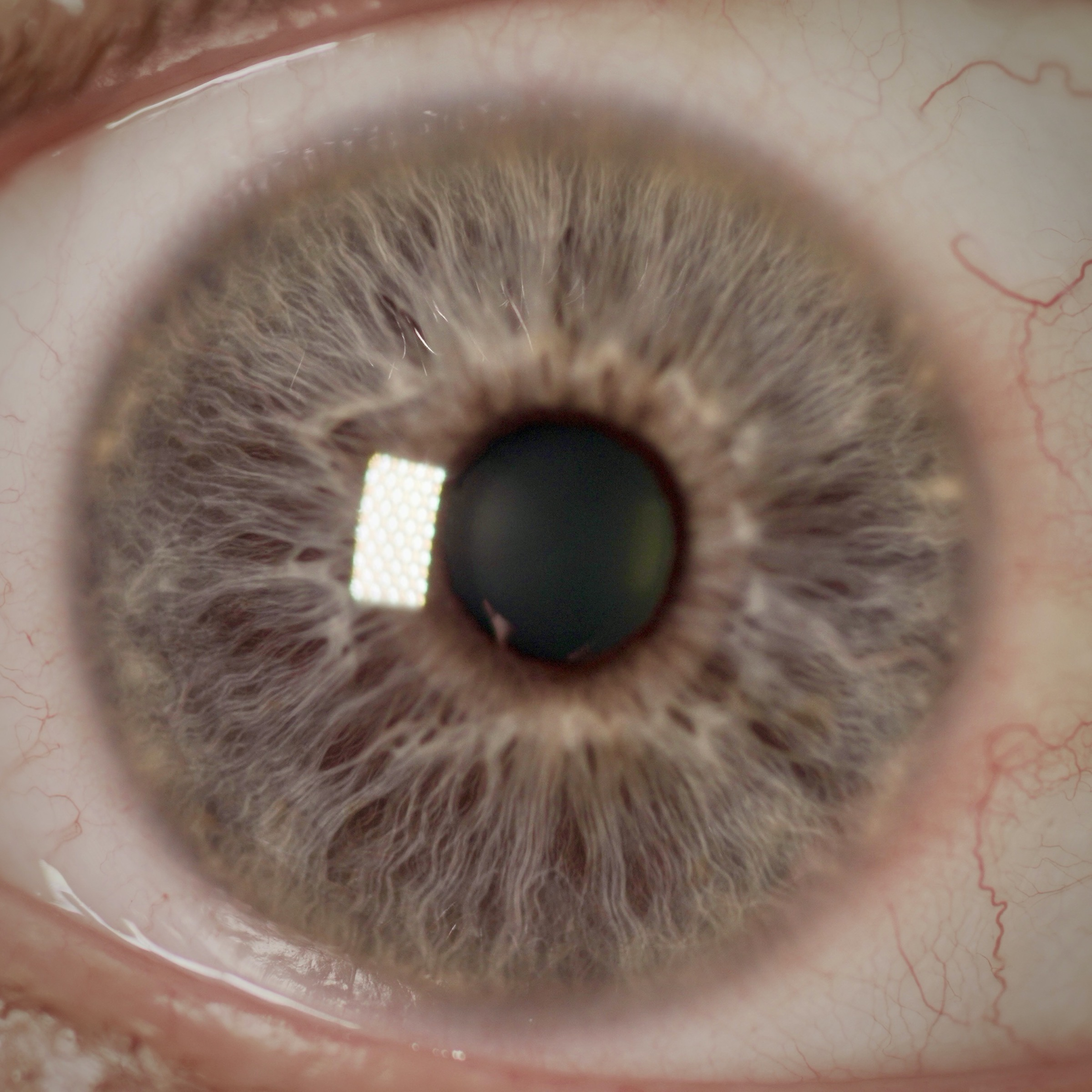 2020 03 01 Vision